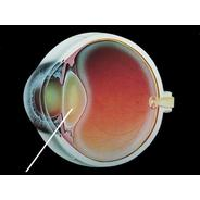 Cataract-grphc.jpg 580×435 pixels